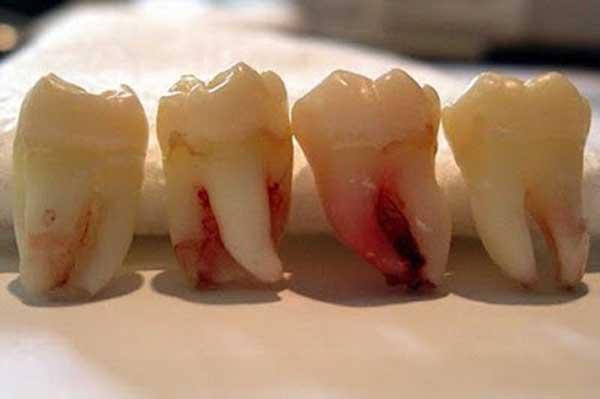 Hướng dẫn 6 bước nhổ răng số 8 tại viện răng hàm mặt trung ương Hà Nội